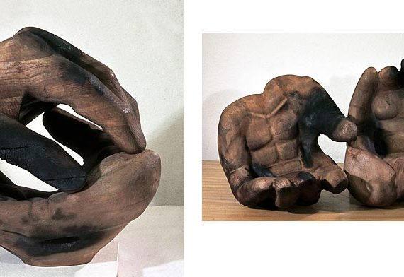 Verbrannte Hände